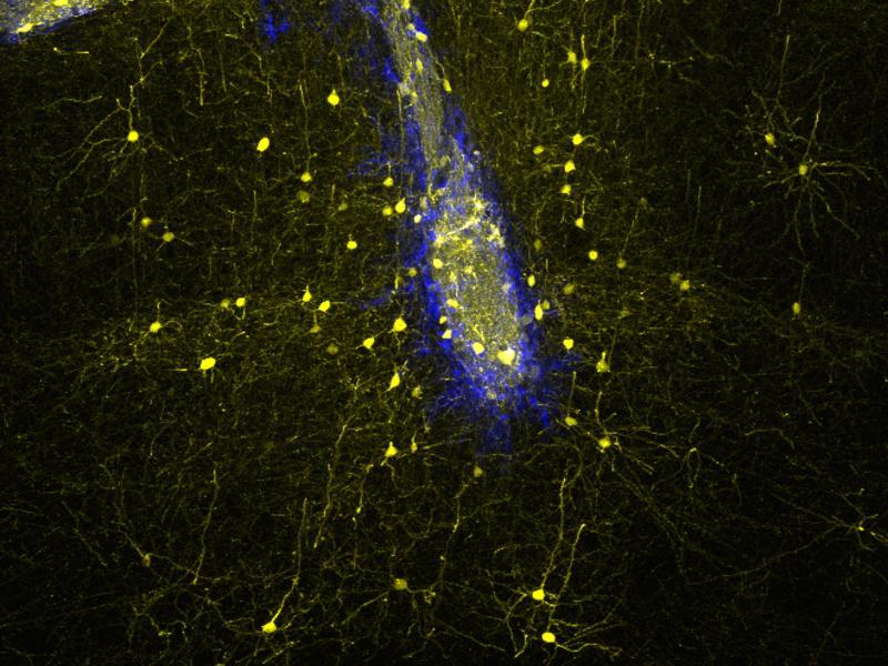 Пересаженные нейроны встроились в мозг