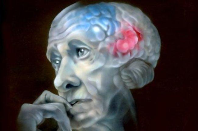 лазеры смогут помочь в лечении болезней Альцгеймера и Паркинсона
