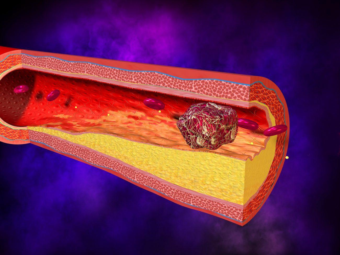 ученые научились находить тромбы