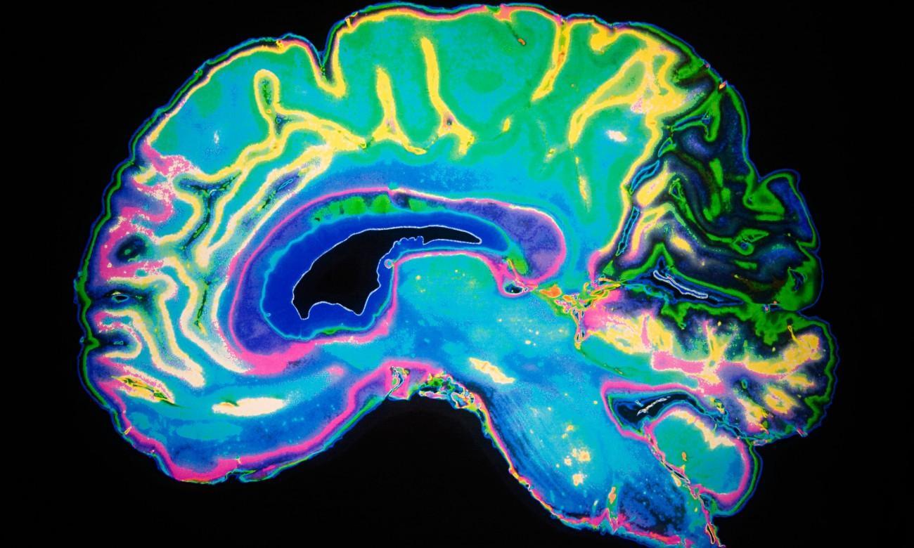 глубокий сон после травмы головы может защитить мозг