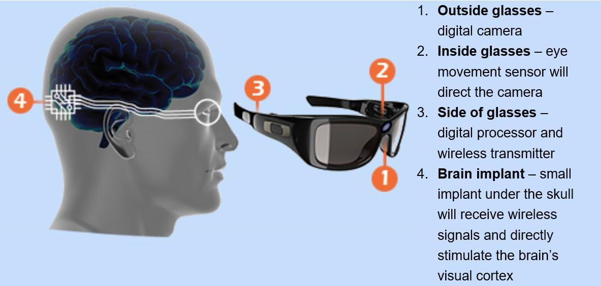 учёные хотят вернуть зрение с помощью бионического глаза
