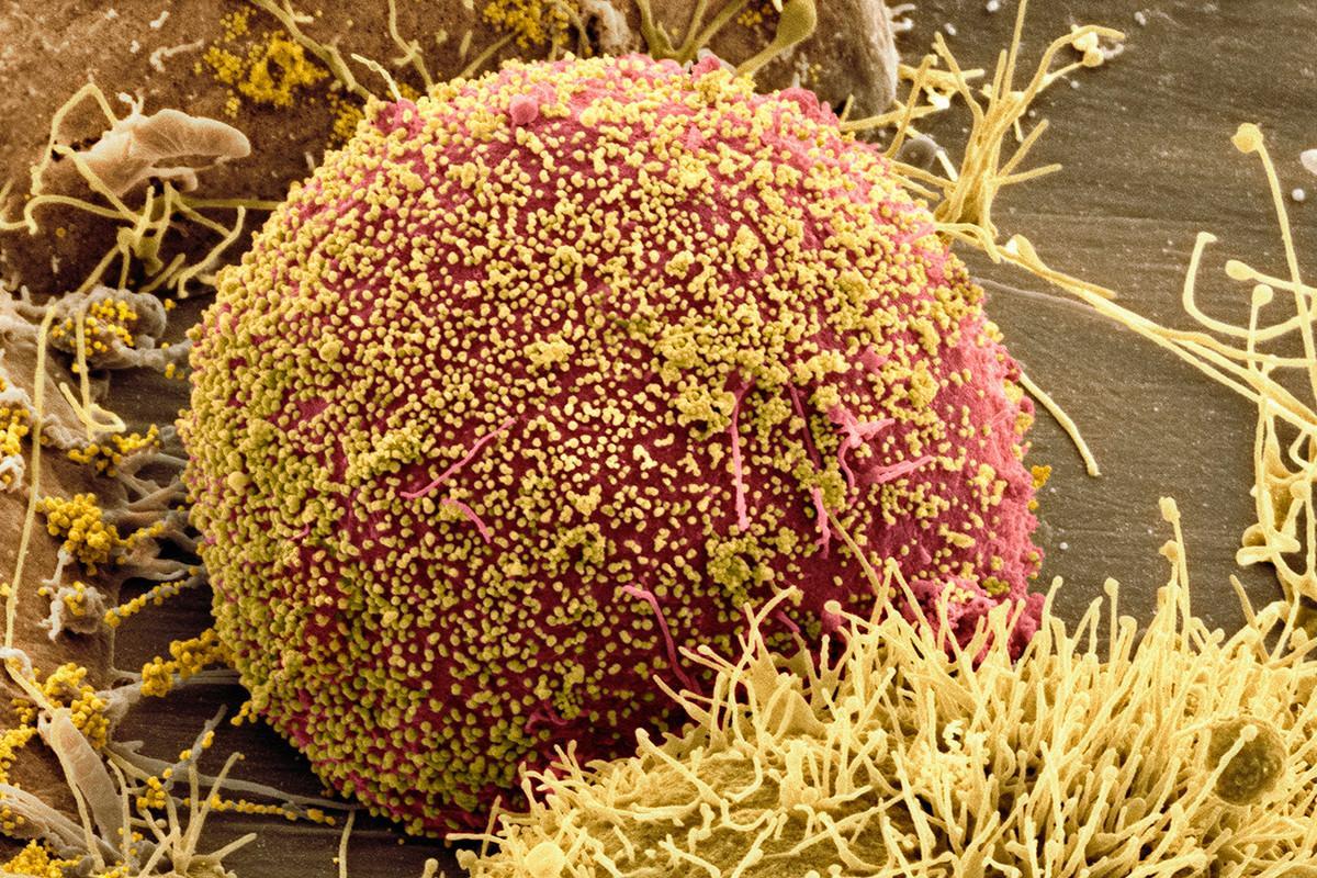 Вакцину от ВИЧ проверят на добровольцах из группы риска