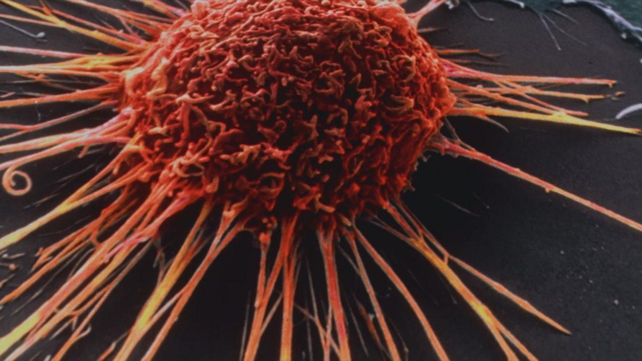 искусственный интеллект от Microsoft поможет лечить рак