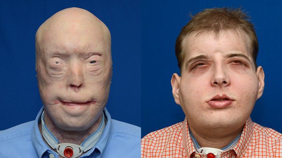 американскому пожарному сделали самую сложную в мире пересадку лица