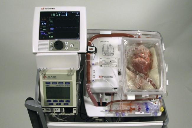 хирурги впервые пересадили мертвое сердце