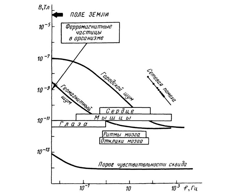 магнитоэнцефалография