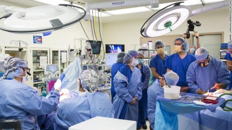 В США проведена уникальная операция по разделению сиамских близнецов