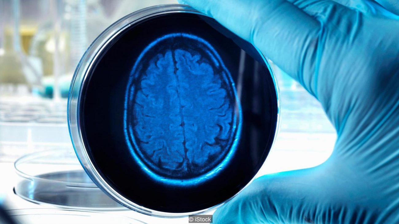 как и зачем ученые выращивают искусственные мозги