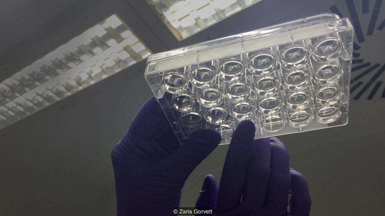 Как и зачем ученые выращивают искусственные мозги?