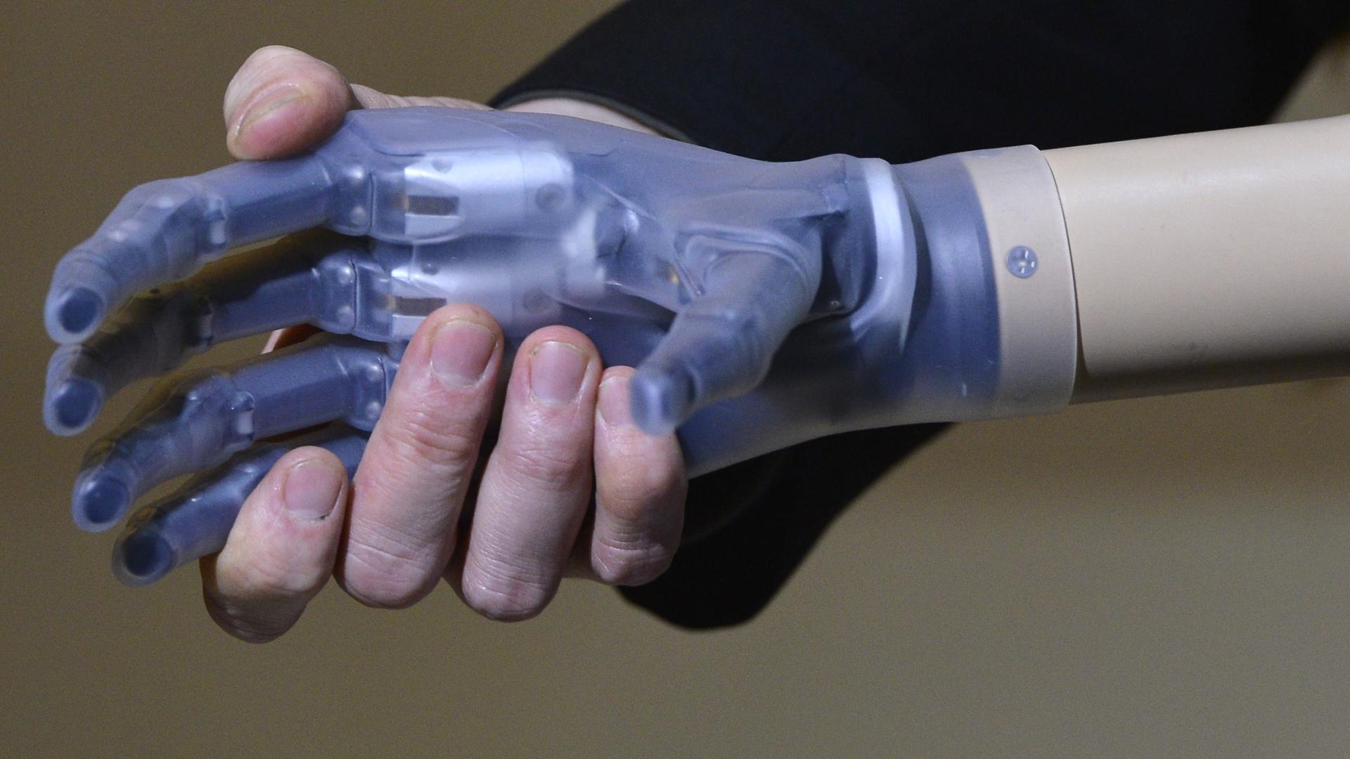 Литовец стал первым в мире человеком с бионным протезом