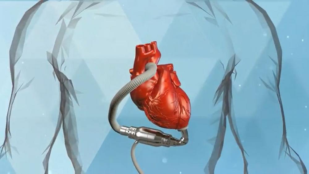 Зеленоградские ученые создали систему вспомогательного кровообращения нового типа