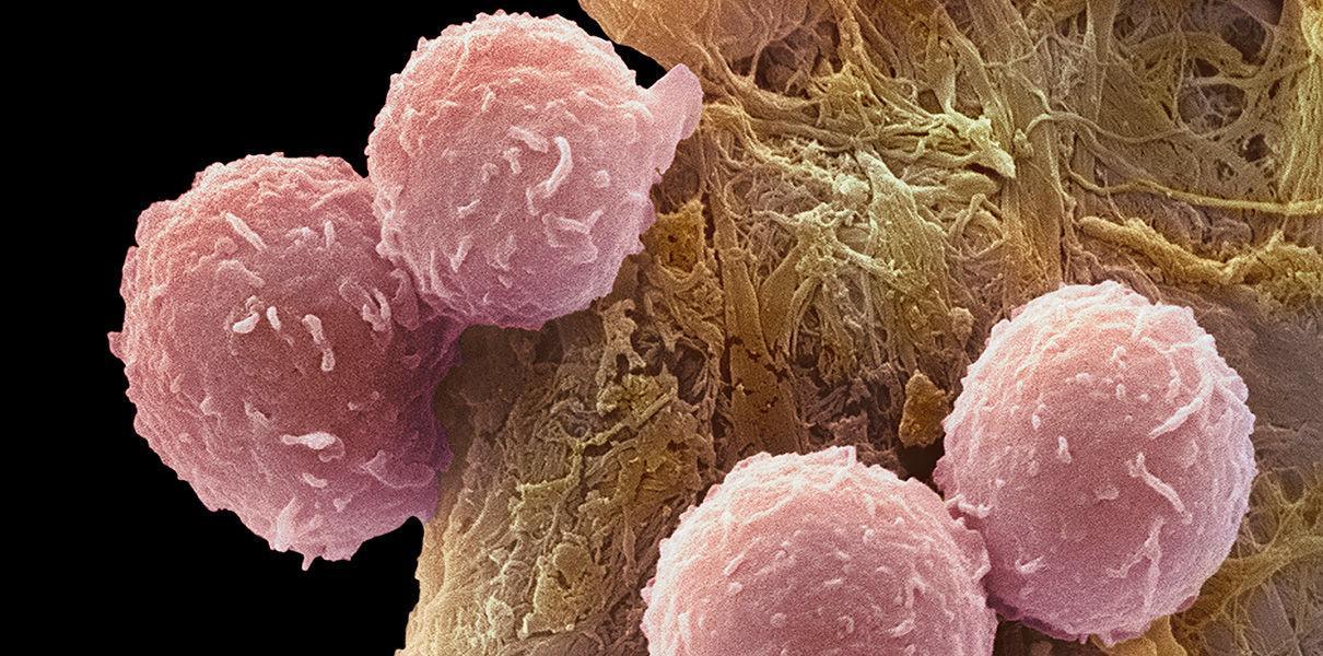 новая вакцина предотвращает рецидив лейкемии