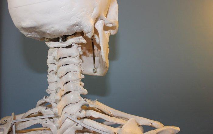 эволюционные изменения приведут к распространению артрита