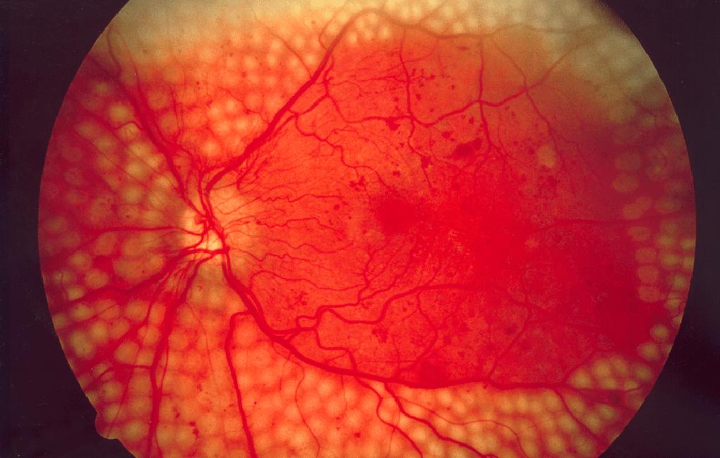 Google использует глубокое обучение для диагностики заболеваний