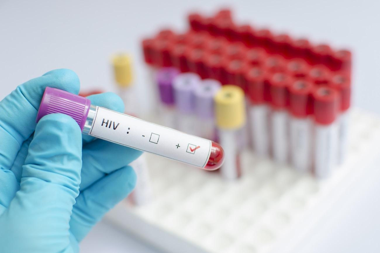 ВИЧ спрятался в костях и активировал их разрушение
