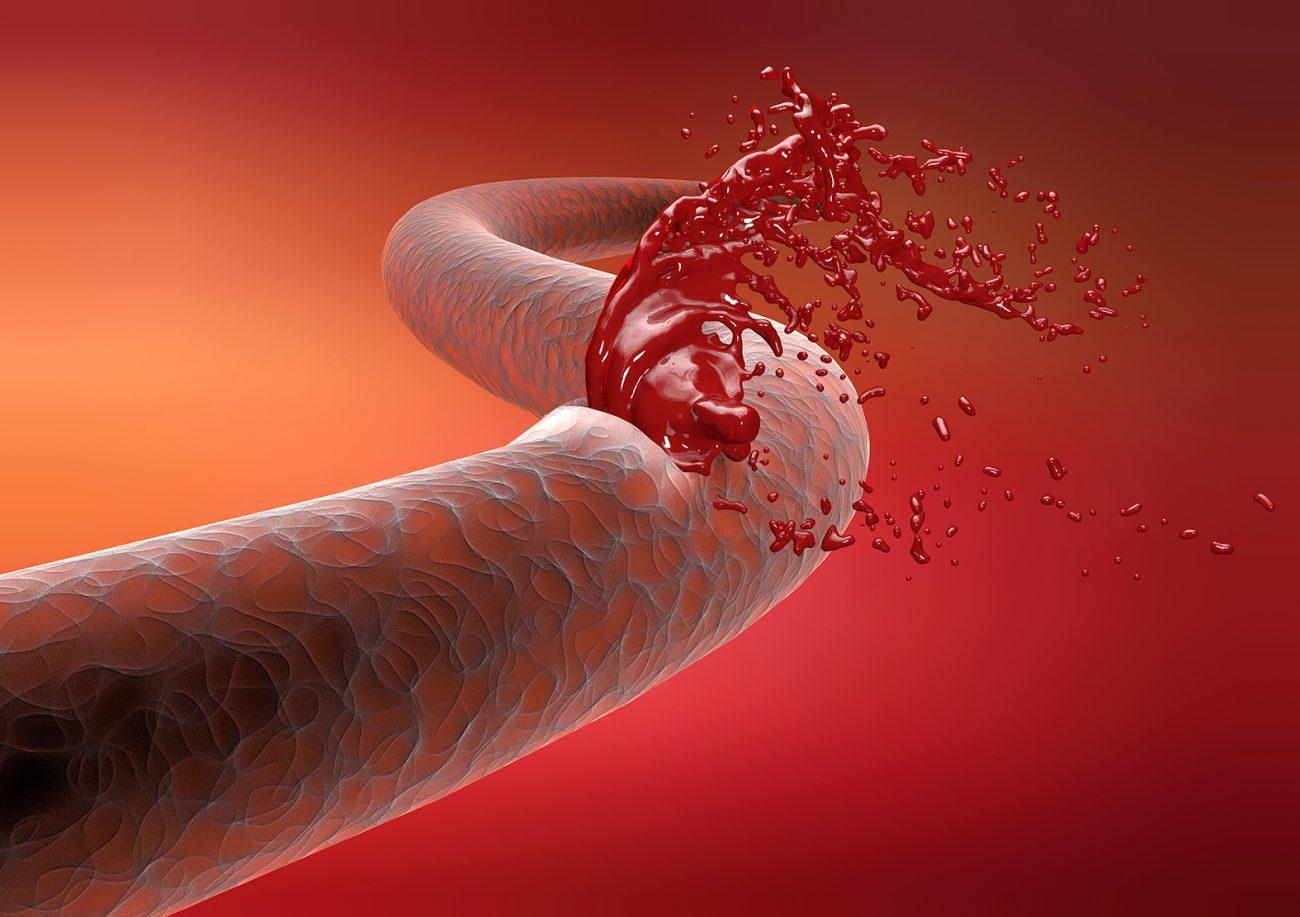 создана таблетка для больных гемофилией