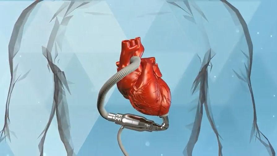 система вспомогательного кровообращения