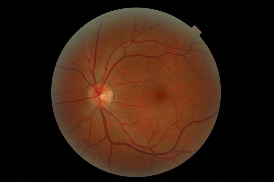 Российские учёные вырастили из перепрограммированных клеток сетчатку глаза человека