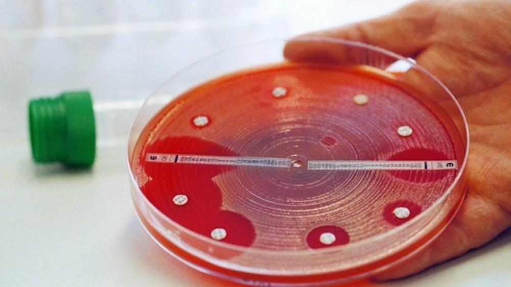 бактерии выработали устойчивость к антибиотикам задолго до их открытия