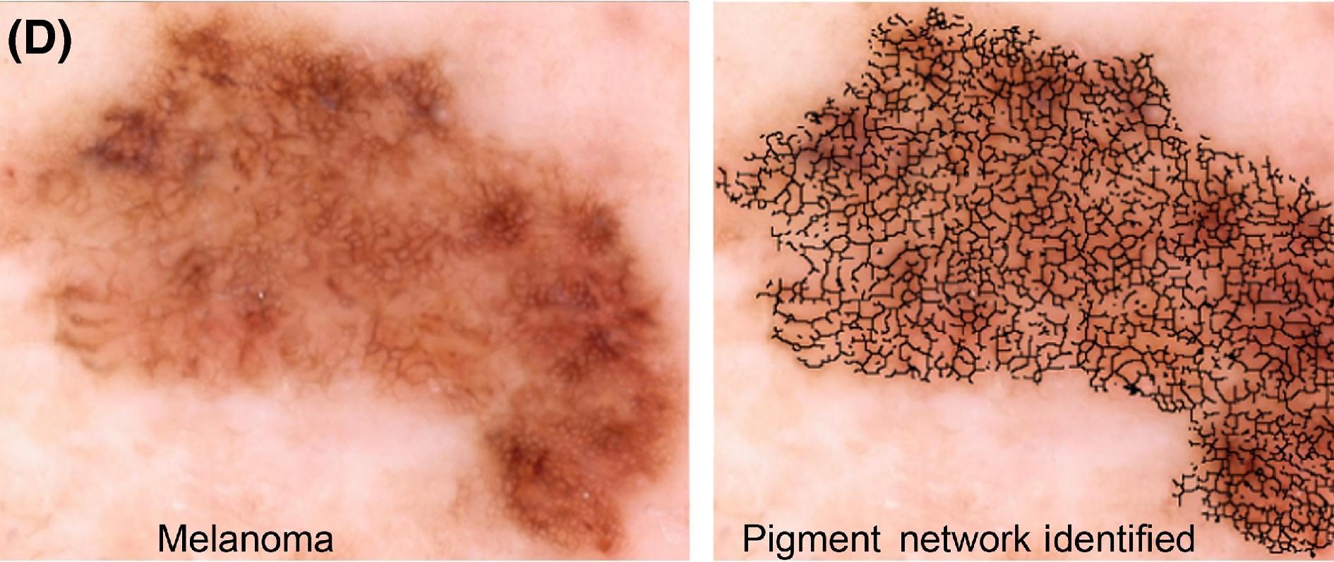 Автоматизированный детектор рака кожи упростит диагностику заболевания