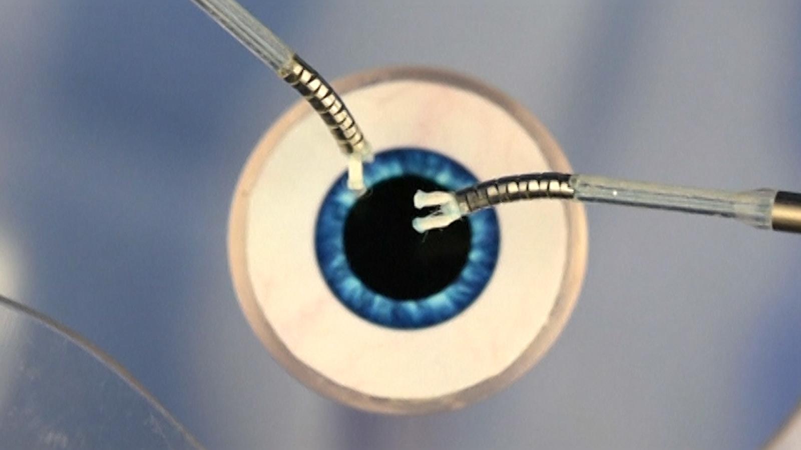 Робот-микрохирург с тентаклями поможет с операциями на глазах