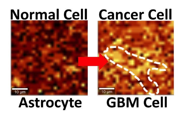 Учёные нашли графену применение в борьбе с раковыми опухолями