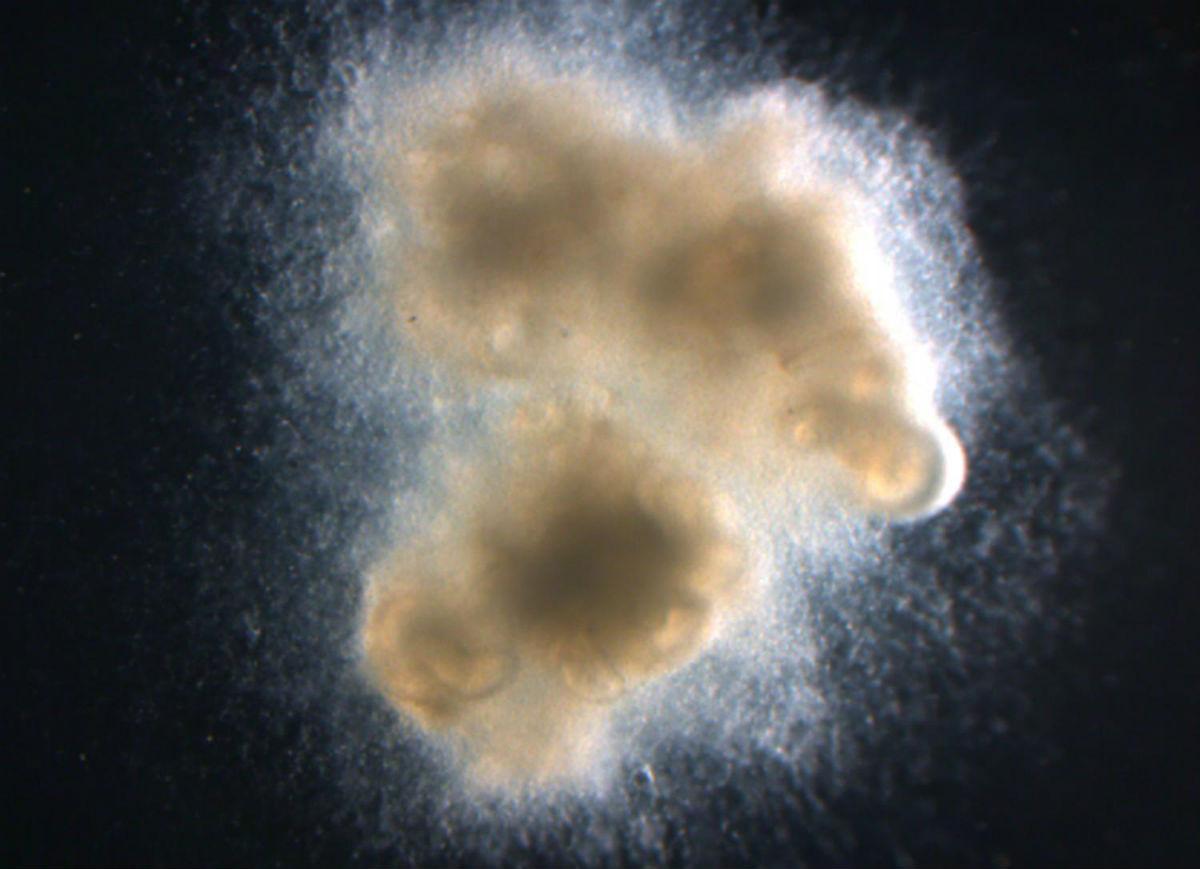 Впервые выращена кишечная ткань, вооружённая собственными нервами