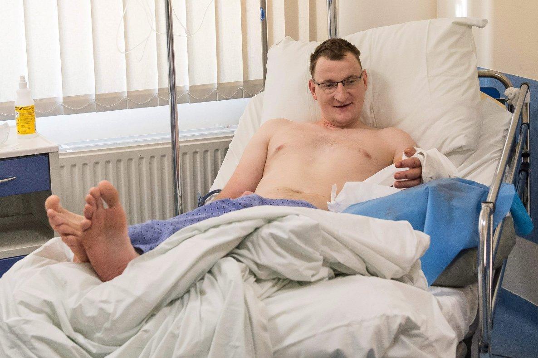 хирурги впервые пересадили руку мужчине, рождённому без конечности