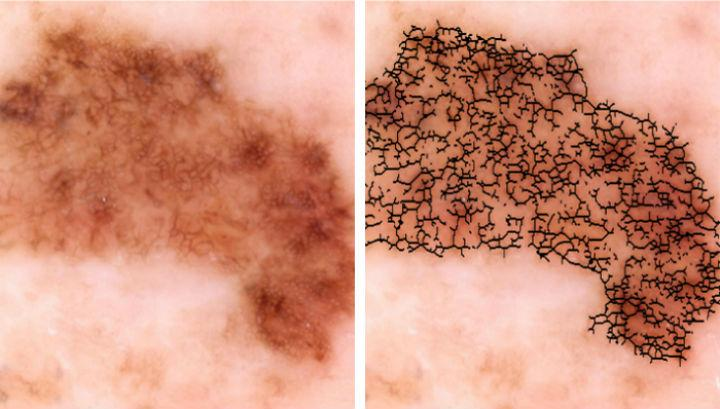 детектор рака кожи