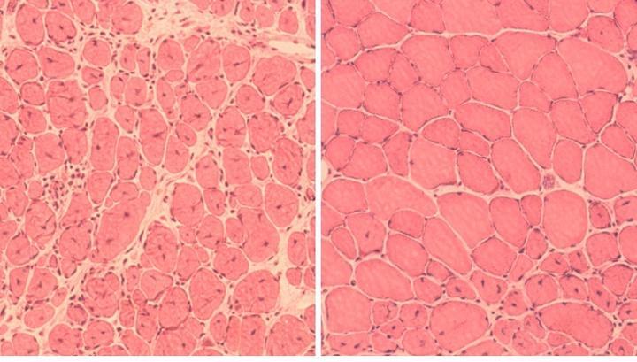 клеточное перепрограммирование замедлило старение