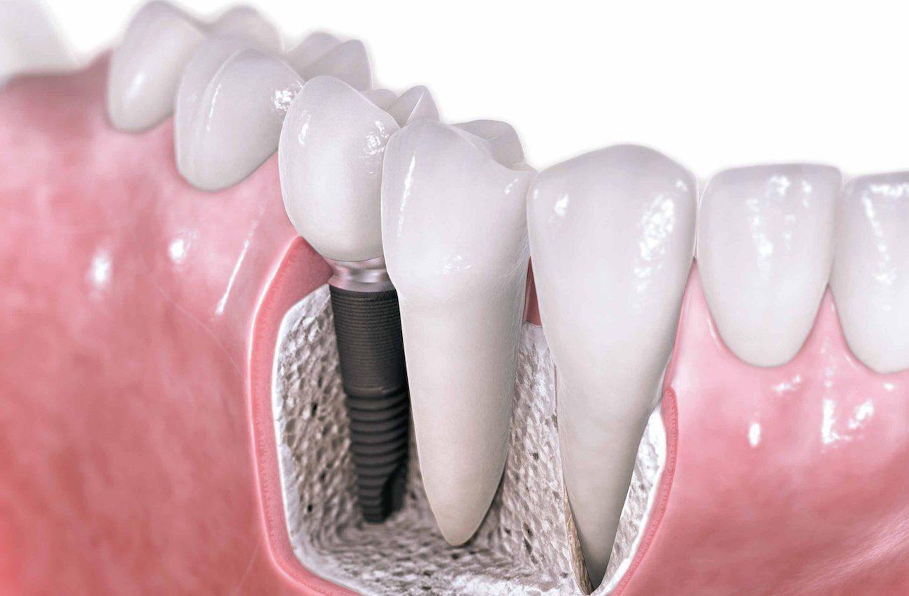 Fotos de proteses fixas dentarias 87