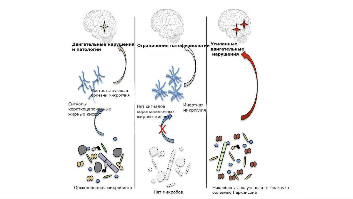 болезнь Паркинсона может зарождаться в кишечнике