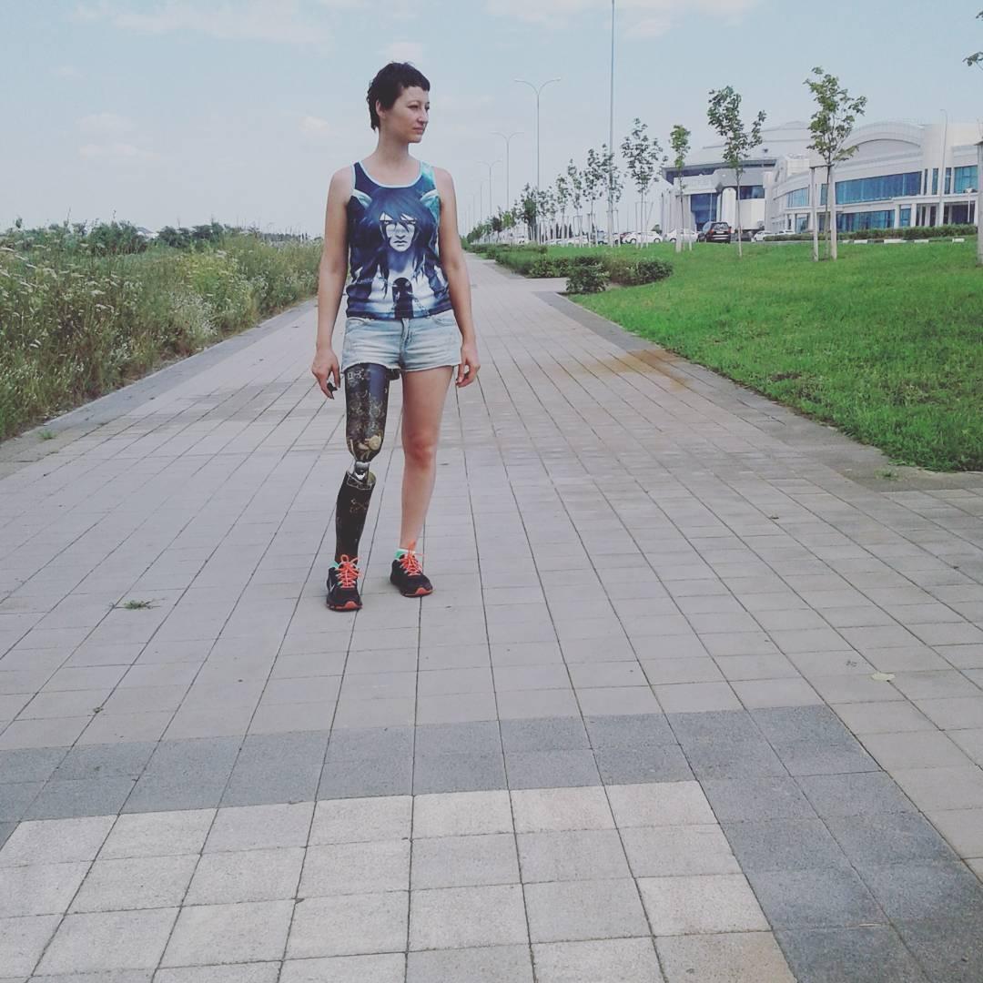 россиянка, пережившая ампутацию ноги, рассказала о своей жизни