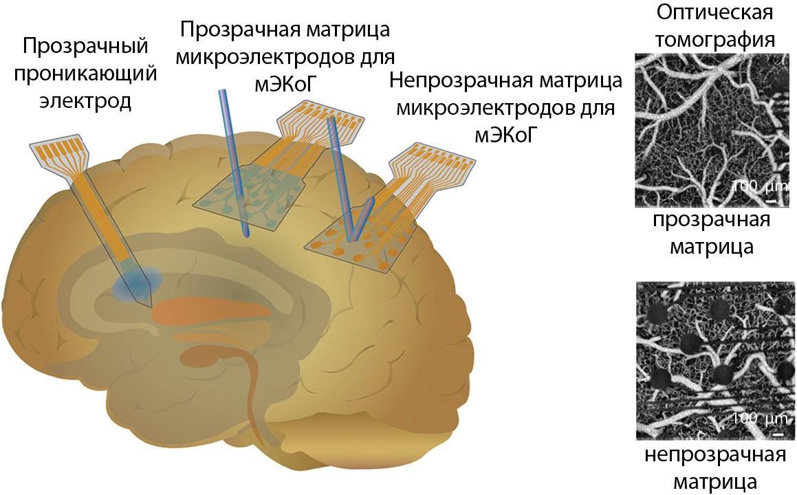 как графен помогает проникнуть в мозг