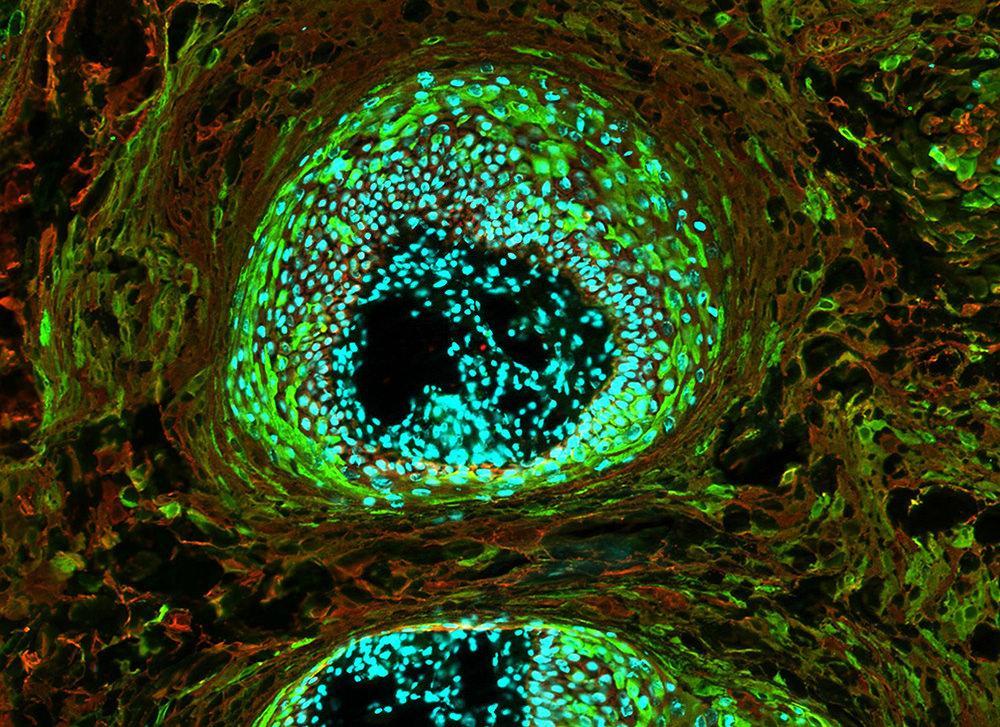 «Двузубый» вирус нацелили на уничтожение раковых клеток и их сообщников