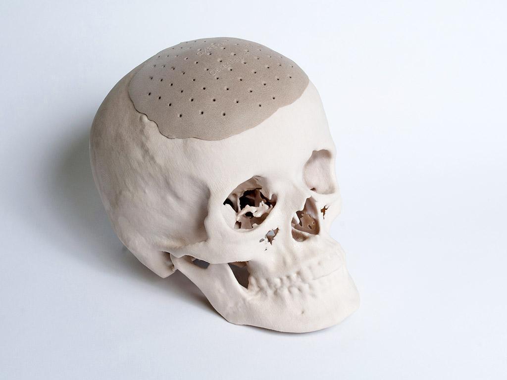 пациенту восстановили 75% поврежденного черепа