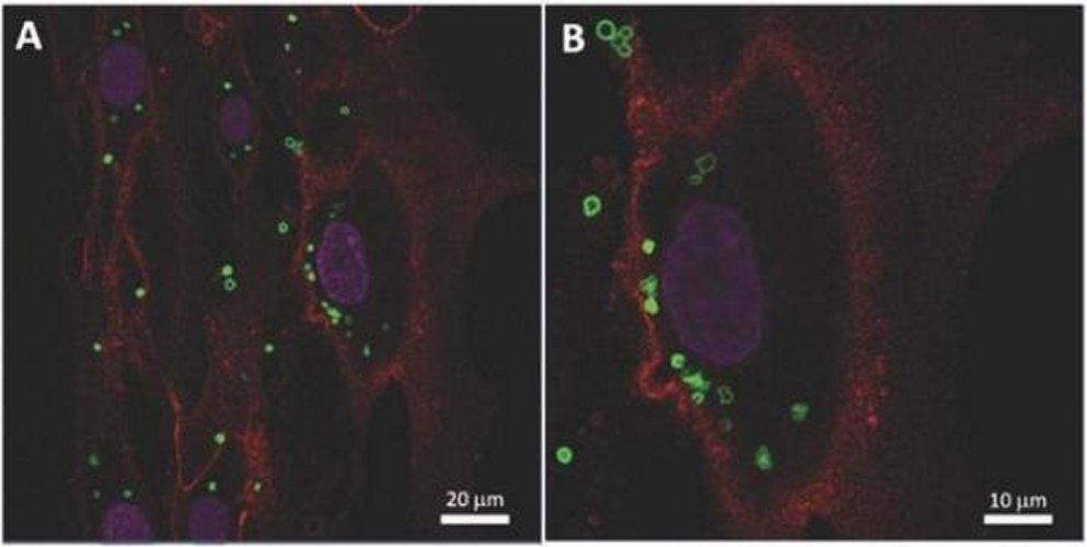 Российские учёные для лечения рака внедрили в стволовые клетки магниты