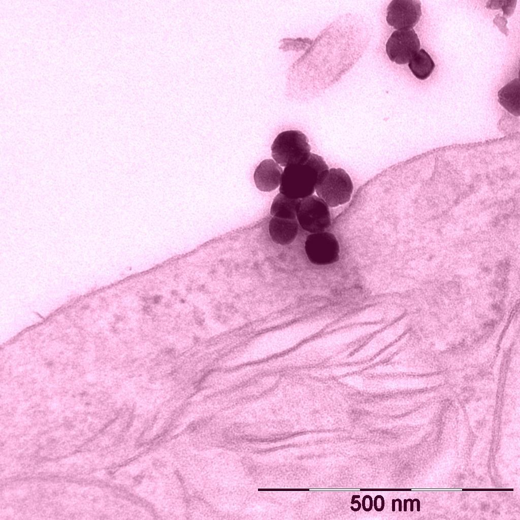 Тёплые наночастицы стимулируют мозг