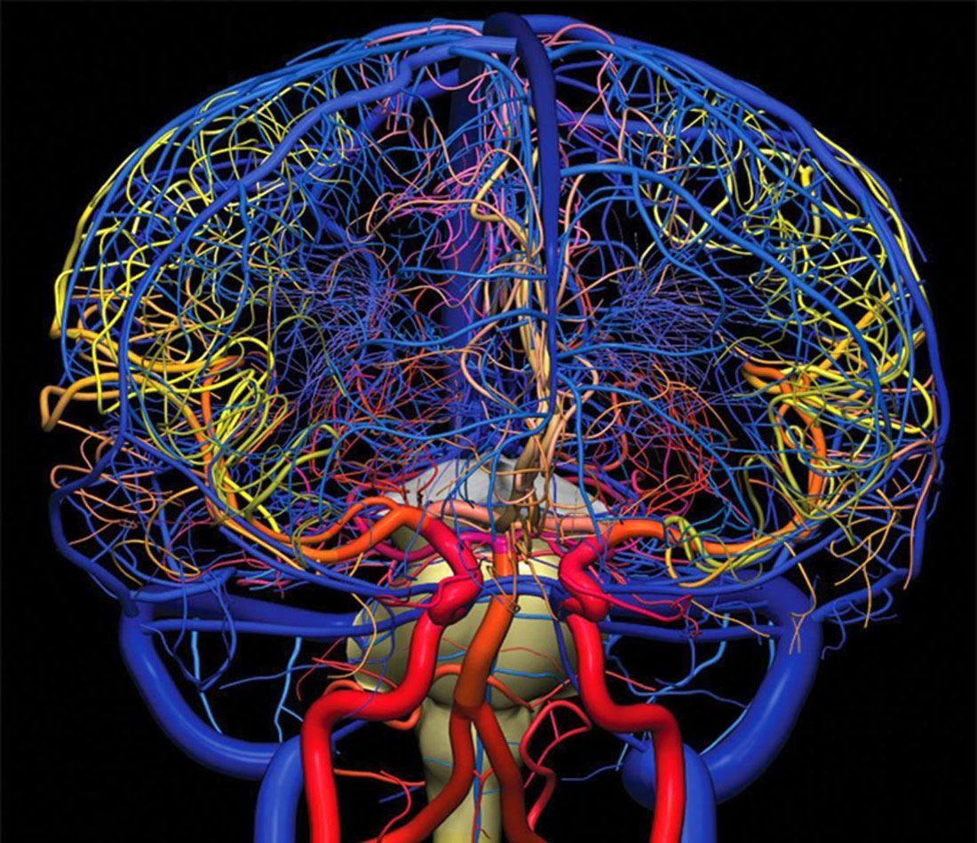 3D-обследование сосудов мозга