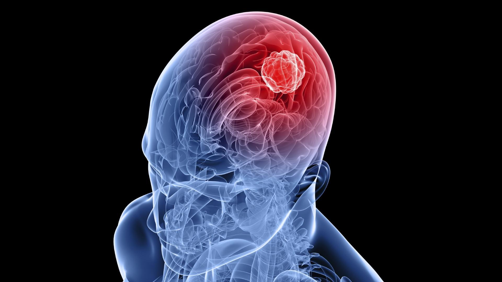 Медики победили опухоль мозга препаратом от малярии