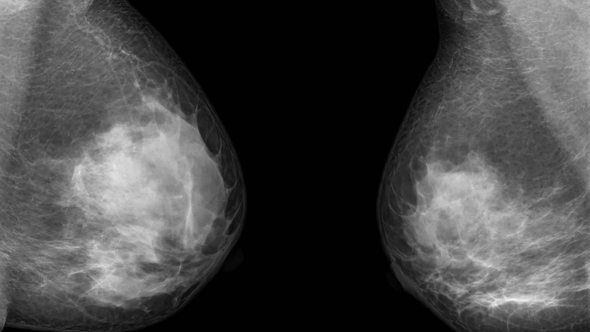 Рак груди и «химический мозг»