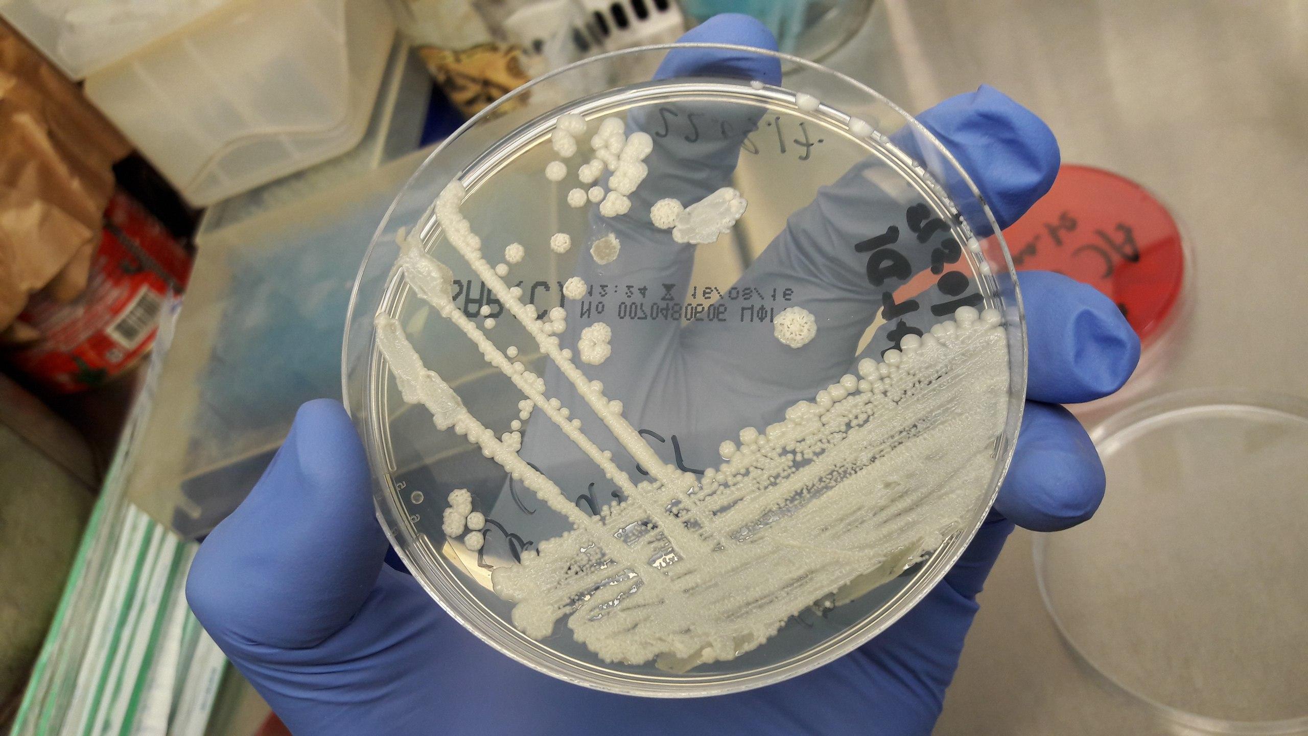Антимикробная резистентность опаснее рака