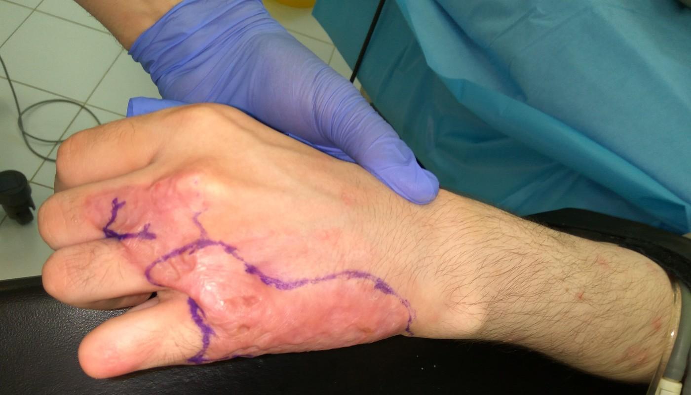 Российские медики успешно пересадили пациенту искусственную кожу