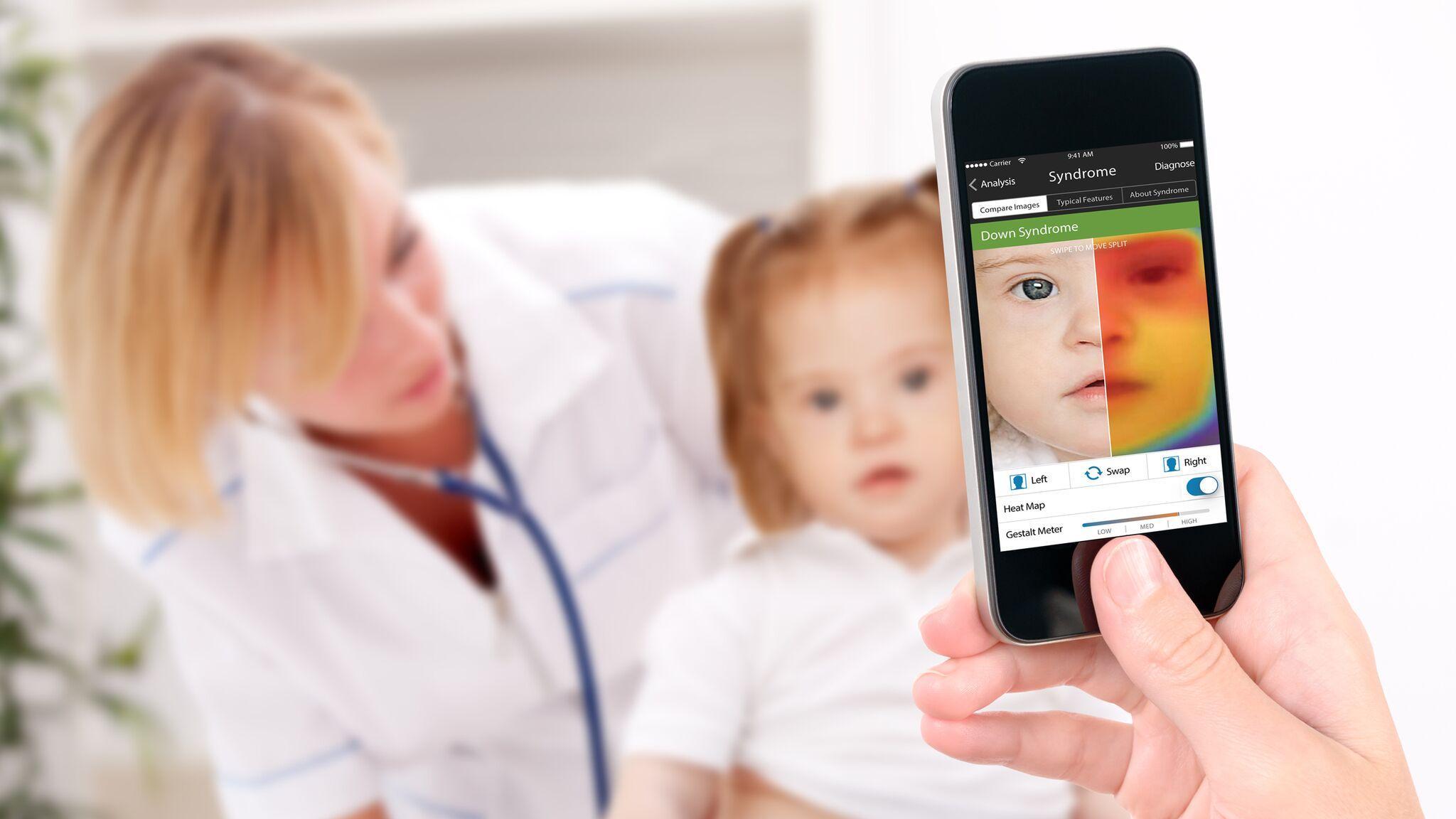 Приложение Face2Gene подтвердило диагноз по фотографии
