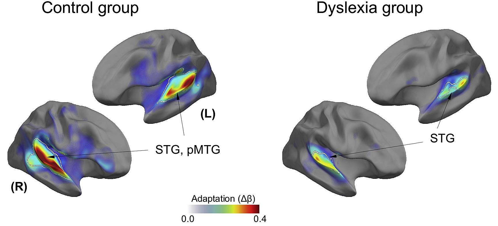 Выявлены новые причины развития дислексии