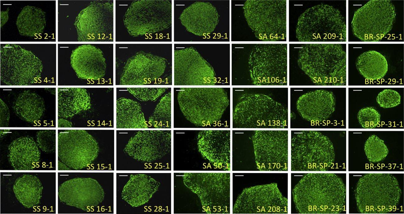 Медики создадут крупнейший в мире банк стволовых клеток для исследования серповидно-клеточной анемии