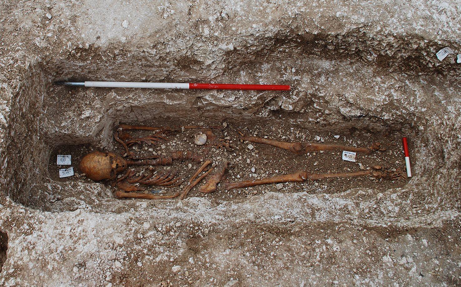 древний скелет рассказал об истории опасного заболевания