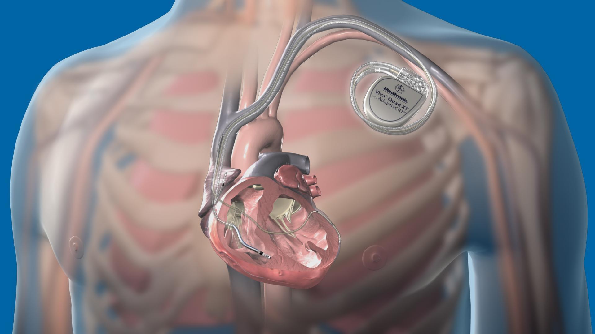 Хакеры способны взломать кардиостимуляторы