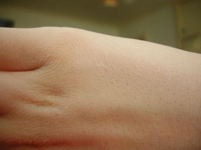обонятельные рецепторы кожи участвуют в её заживлении