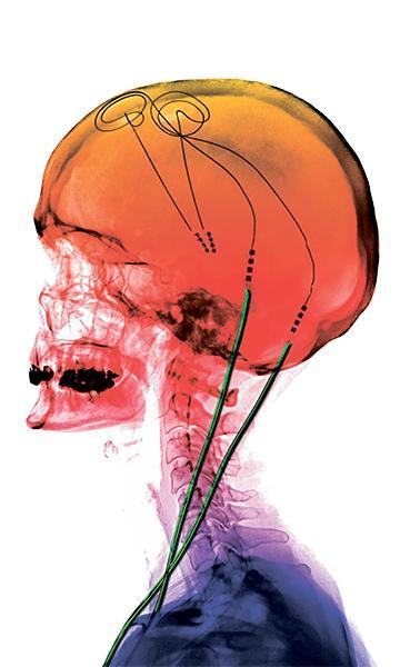 непонятное, но эффективное лечение болезни Паркинсона
